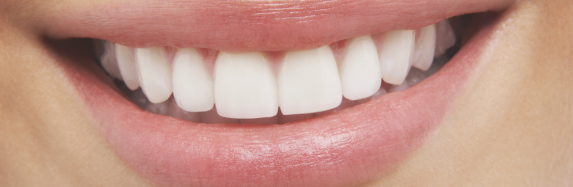 Just Smile Bright With Teeth Whitening