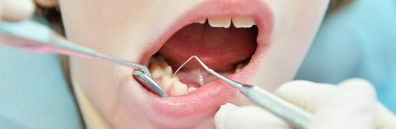 What Is Tooth Enamel Repair