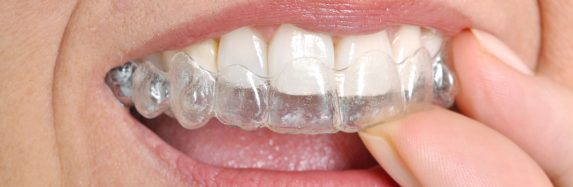 Can Invisalign Fix Overbite
