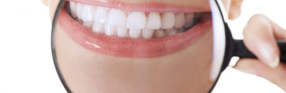 If you want a perfect smile, teeth whitening is an option