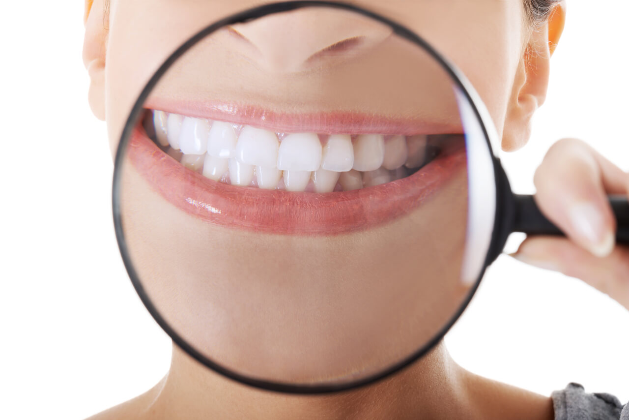 perfect smile teeth whitening