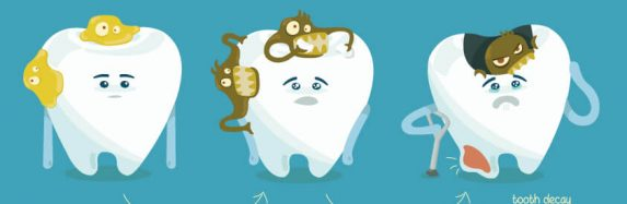 Understanding the stages of tooth decay