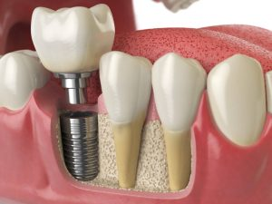 clear choice dental implants
