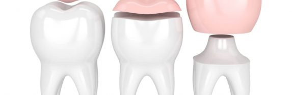 Dental onlay vs crown: What's the difference?