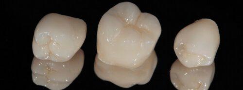 Zirconia Crowns vs Porcelain