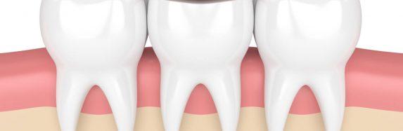 Dental Overlay Tooth Prosthetics