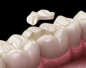 dental inlay vs filling