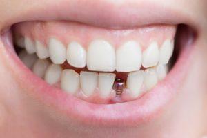 mini tooth implant