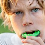 Types of Dental Mouthguards and How They Work