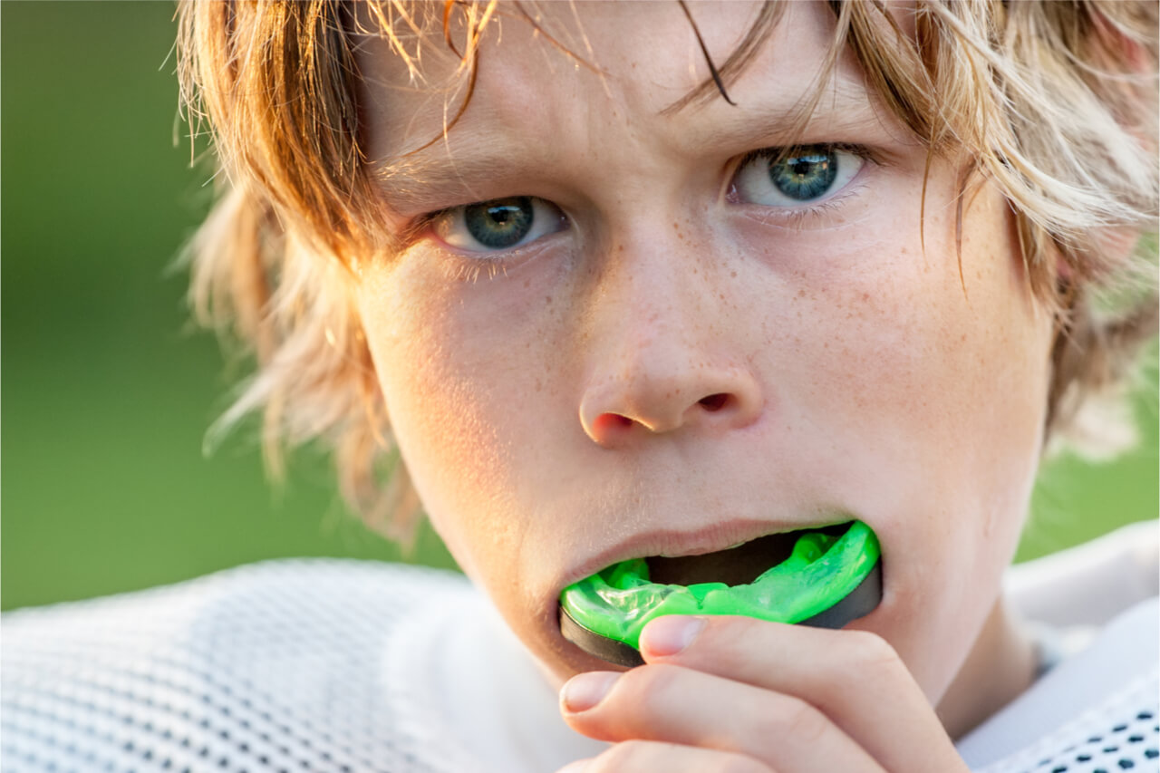 dental mouthguard