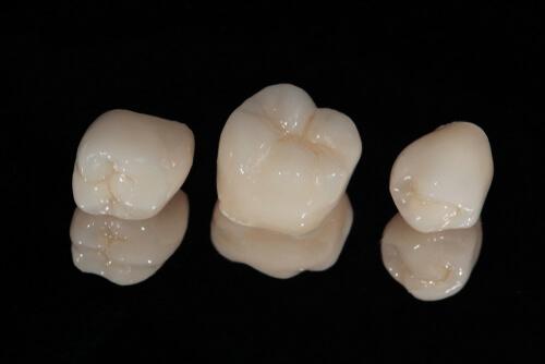 Zirconia Crowns vs Porcelain  cosmetic-smile.com